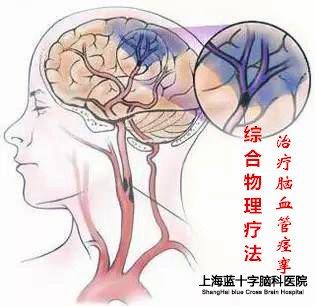 脑血管痉挛做那种检查最好