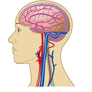 蓝十字脑科_脑血管畸形的病因_症状_诊断_治疗_危害_注意事项_上海脑血管 ...